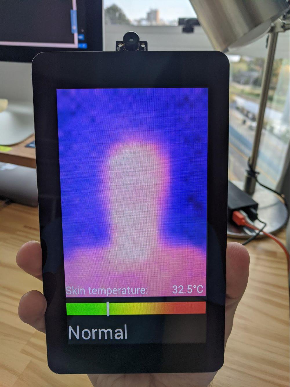 Example of skin viewed through thermal camera